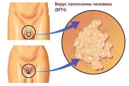 anogenitális szemölcsök a bélférgek kezelése