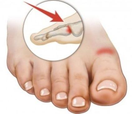 Боли в суставах стопы и пальцев ног
