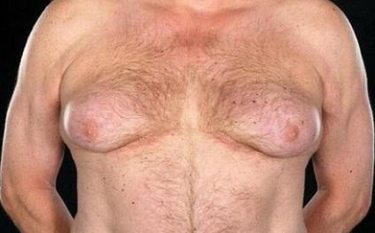 Порно фото молодых с обвисшей грудью149