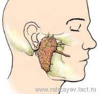 nyálmirigy ciszta Klebsiella és prostatitis