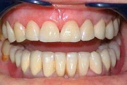 Коронка на зуб металлокерамика срок службы