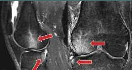 a térd csontvelő ödéma kezelése
