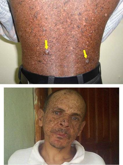 Metasztatikus malignus melanoma várható élettartama | Miri Tej