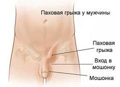 fáj a pubis és a prosztatitis)