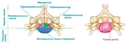 Медианно парамедианная грыжа шейного отдела позвоночника