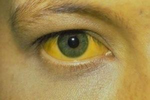 sárga szemfehérje
