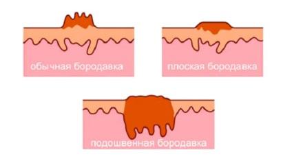 parazita tünetek benned szemölcsök a kisgyermek nyelvén