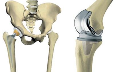 fájdalomcsillapító kenőcsök nyaki osteochondrozishoz panziók, ahol az ízületeket kezelik