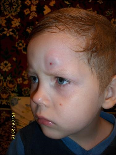 У ребенка сильный ушиб шишка на лбу что делать 108