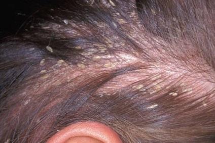 ekcéma fejbőr kezelés akerat krém pikkelysömör