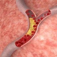 Ознаки трансмурального інфаркту міокарда на ЕКГ