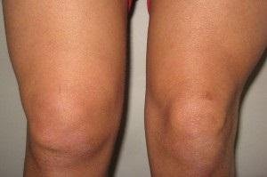 sinovita simptome unguent eficient pentru articulația genunchiului