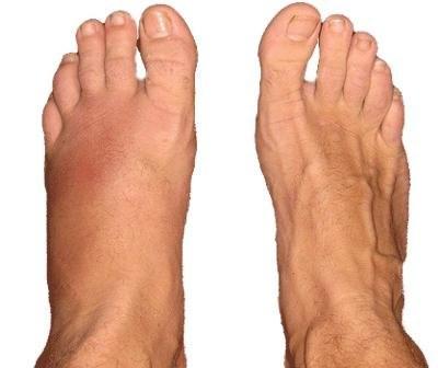 lábfej csont zúzódás