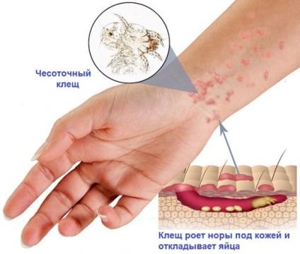 gyógyszer a szemférgek ellen