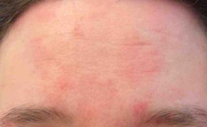 bőrbetegségek nevei