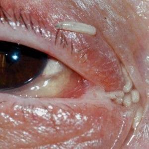 Paraziták a bőr alatt emberek kezelésére
