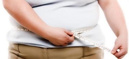 Homeopátia az elhízás