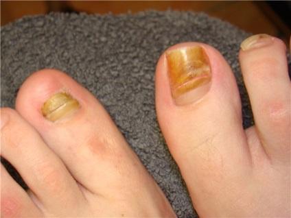 Что делать если ногти не растут в домашних условиях 965