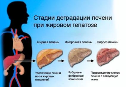 Elhízás máj tünetei, diagnózisa, kezelése