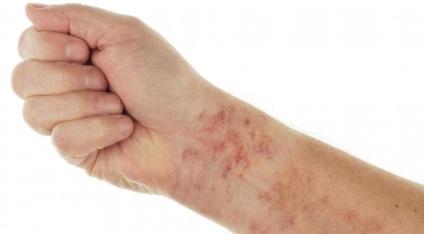 hpv impfung folgen tratament helminths adulți medicamente