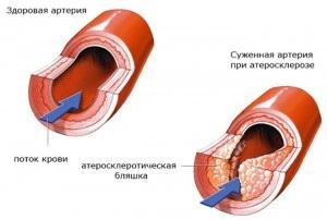 Hasi aorta meszesedés kezelése