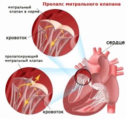 Витамины при пролапсе митрального клапана