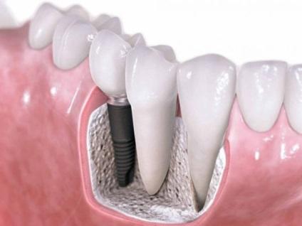 Восстановление зуба на штифте цены