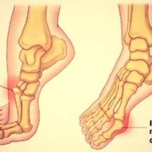 după dislocarea piciorului  articulația doare