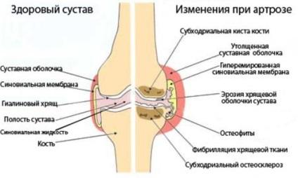 a térd kétoldalú gonartrózisa 2 fokos kezelés