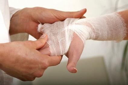 răni după îndepărtarea papiloamelor paraziții din creier sunt simptome