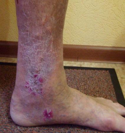 Трофические язвы на ногах и сахарный диабет