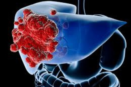 máj adenoma tünetei