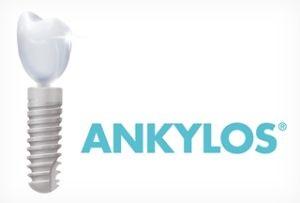 Німецькі імпланти ankylos (анкілоз) види 09c349791e104