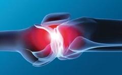 Hiperuricémiához - okai, tünetei, diéta, kezelés