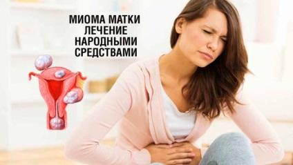 Чем лечит миому матки в домашних условиях 158