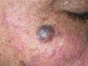 bazális sejtes bőrrák