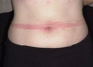 Bőr masztocitózis