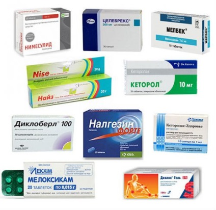 Ízületi fájdalmak: melyik gyógyszert válasszam?