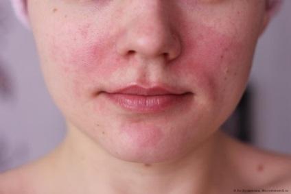 vörös foltok az arcon alkoholfogyasztás után.