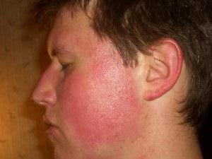 vörös foltok az arcon pattanások után. kezelés homeopátia gyógyszerek pikkelysömör