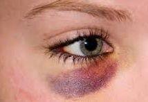 hogyan lehet eltávolítani a szem alatti zsírlerakódásokat