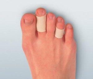 bőrkeményedés a lábujjak között