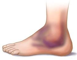 Az okok a ödéma láb törés és annak eltávolítását