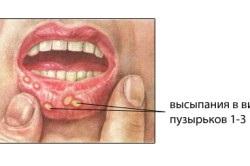 Gyulladás a szájban: mitől alakulhat ki és mit tehetünk ellene?