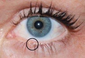 Szemrák: fotó, első tünetek, kezelés