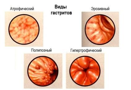Катаральный гастродуоденит симптомы