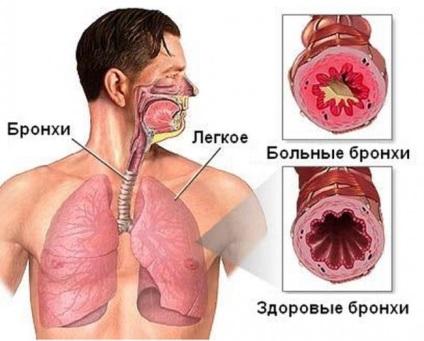 Как начинается бронхиальная астма симптомы