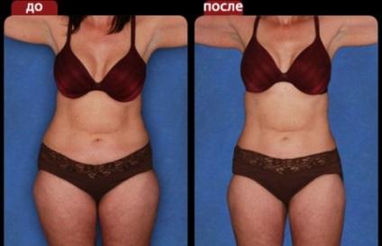 Як прибрати жир зі стегон в домашніх умовах за допомогою фізичних вправ