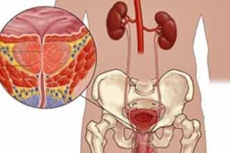 Krónikus prostatitis színpadi remisszió