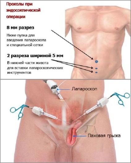Какие симптомы при паховой грыже у мужчин